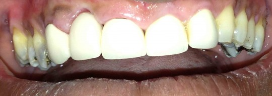 dental-bridge-after1-birmingham-al.