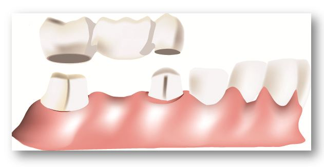 Fixed Prosthetics -What is a dental implant and what is a