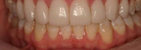 Porcelain-veneers-after-birmingham-al