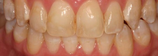 Porcelain-veneers-before-birmingham-al