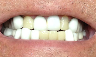 dental-crown-birmingham-al-before