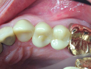 dental-crown2-birmingham-al