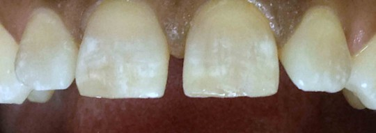 tooth-bonding-birmingham-al-after
