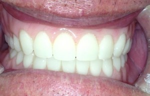 birmingham-al-denture-best-value-price